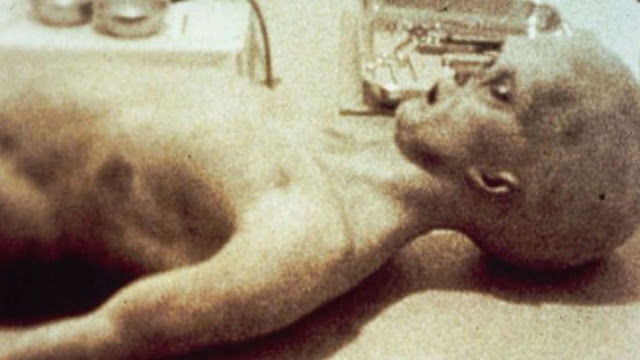 Alien-Autopsy-Fact-Fiction